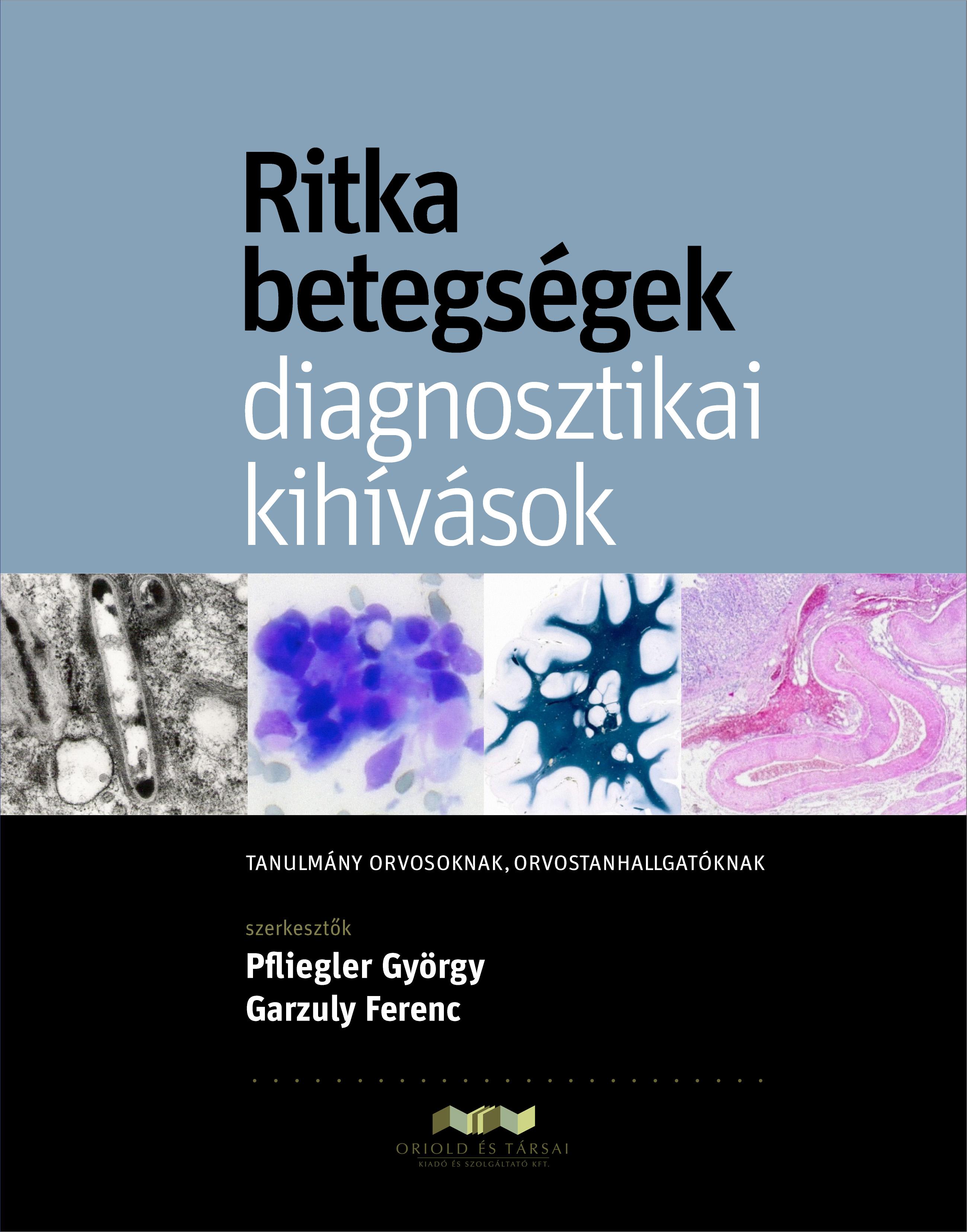 ODT - témakiírás: Resch Miklós: A vitreoretinális betegségek klinikai,
