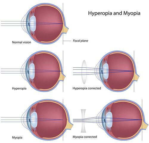 szembetegség myopia és hyperopia