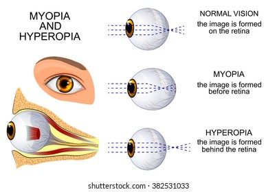 hyperopia keresése
