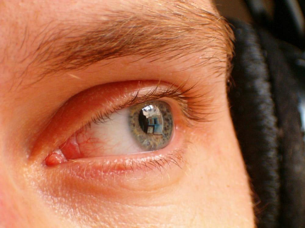 száraz szem homályos látás