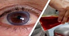 vörös foltok a látáson