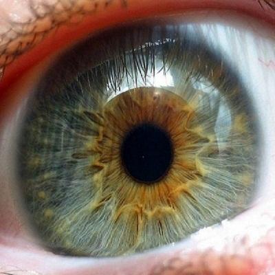 a látássérülés kialakulásának jellemzői látás elvesztése és zsibbadás