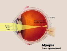 aloe és myopia)
