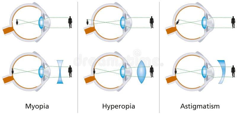 a szem myopia és hyperopia)