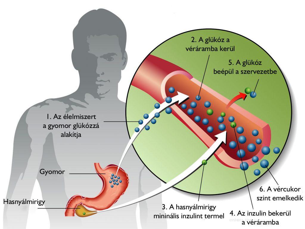 Lássuk tisztán a cukorbetegek szemészeti problémáit!
