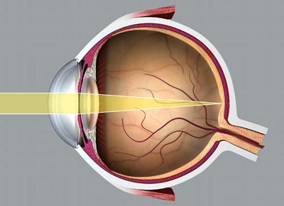 rövidlátás különböző szemek