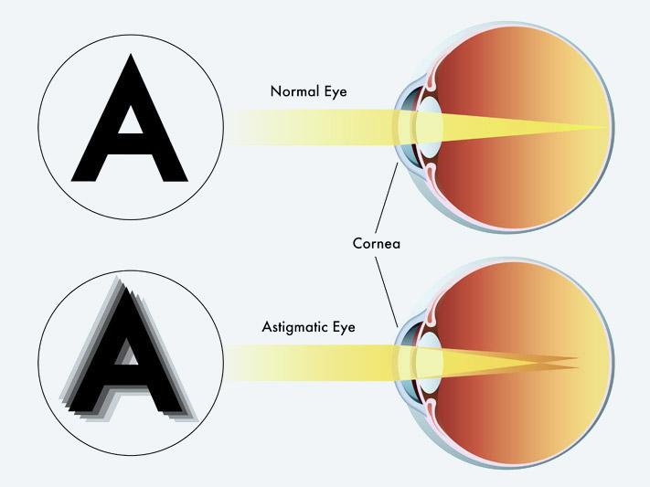 Erőteljes gyakorlatok a látás helyreállításához