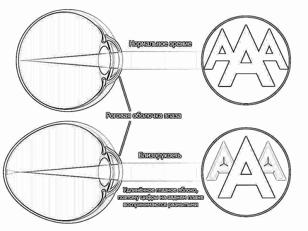 Marina Ilyinskaya látásának helyreállításának módszerei
