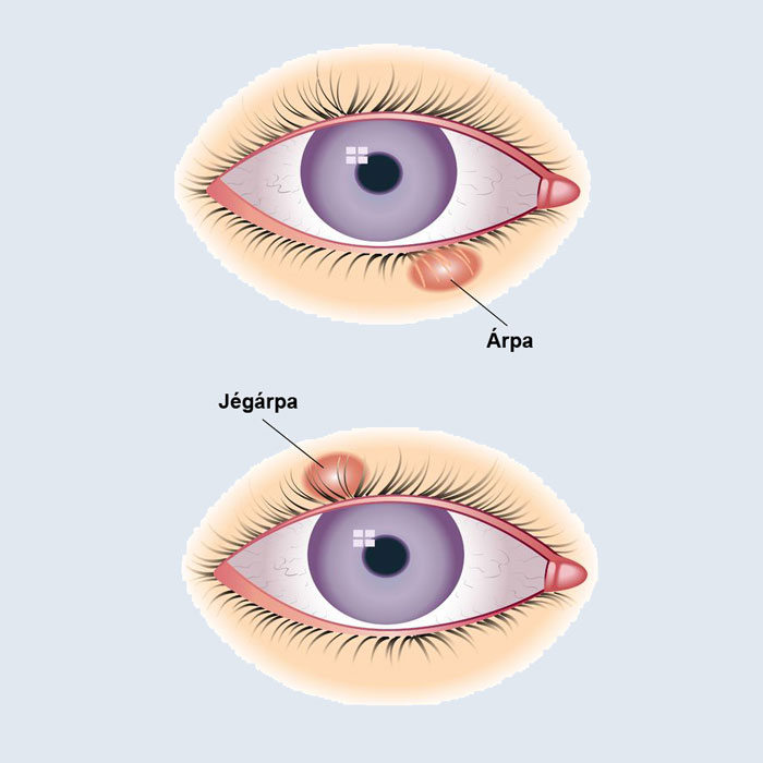 az egyik szem látása élesen csökkent)