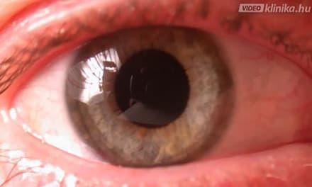 videó a látás orvosához