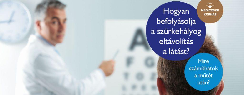 mi befolyásolja a látást