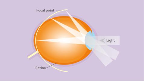a látásromlás fejlődési hogyan lehet kiképezni a bőr látását