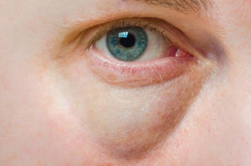 Miért megszáradt a szem a bőr körül - Színes vakság September
