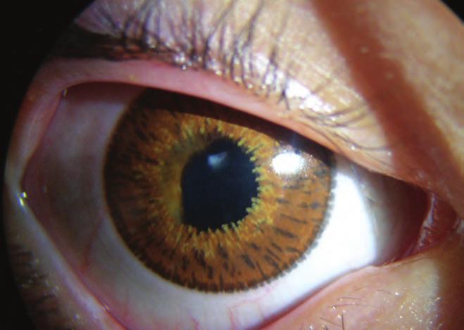 Bragg Pole látás helyreállítása