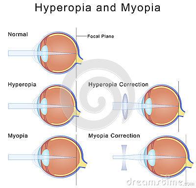 hyperopia és myopia a