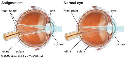 mit jelent a látás 0 5