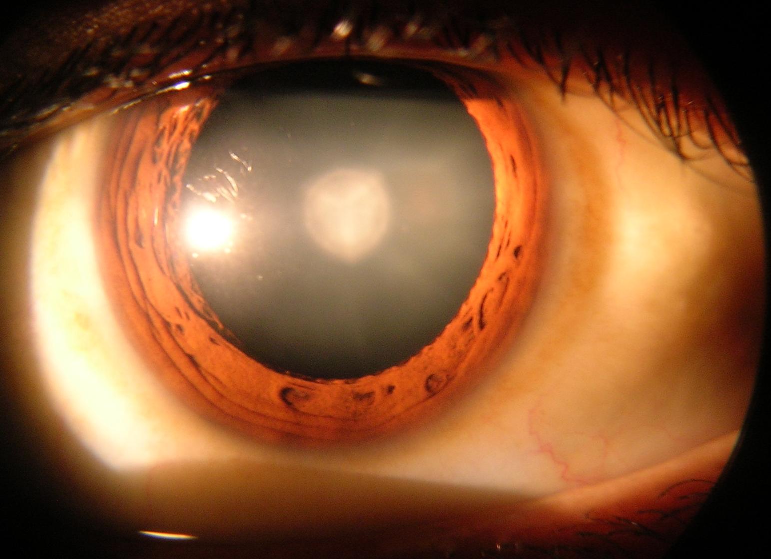 a látás tisztasága és a műtét után)