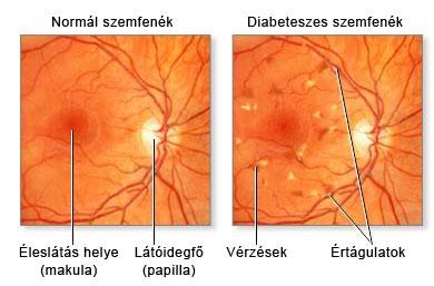 ha a látás elvész)