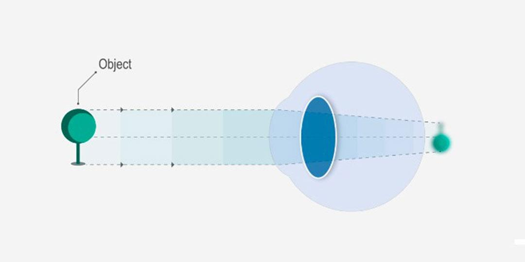 rövidlátás veszélye akinek éles látása van