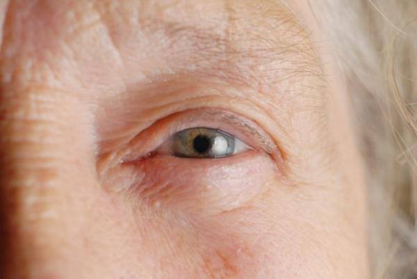 szürkehályog látásélesség