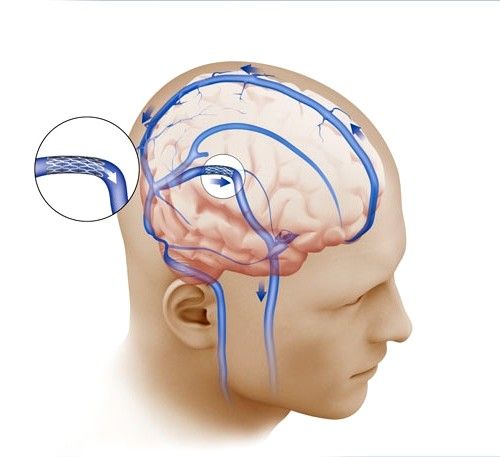 Migrén kezelés