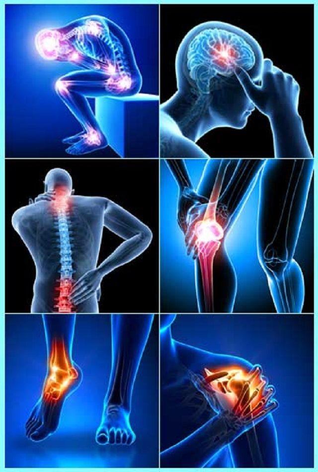 mi a röntgensugárzás
