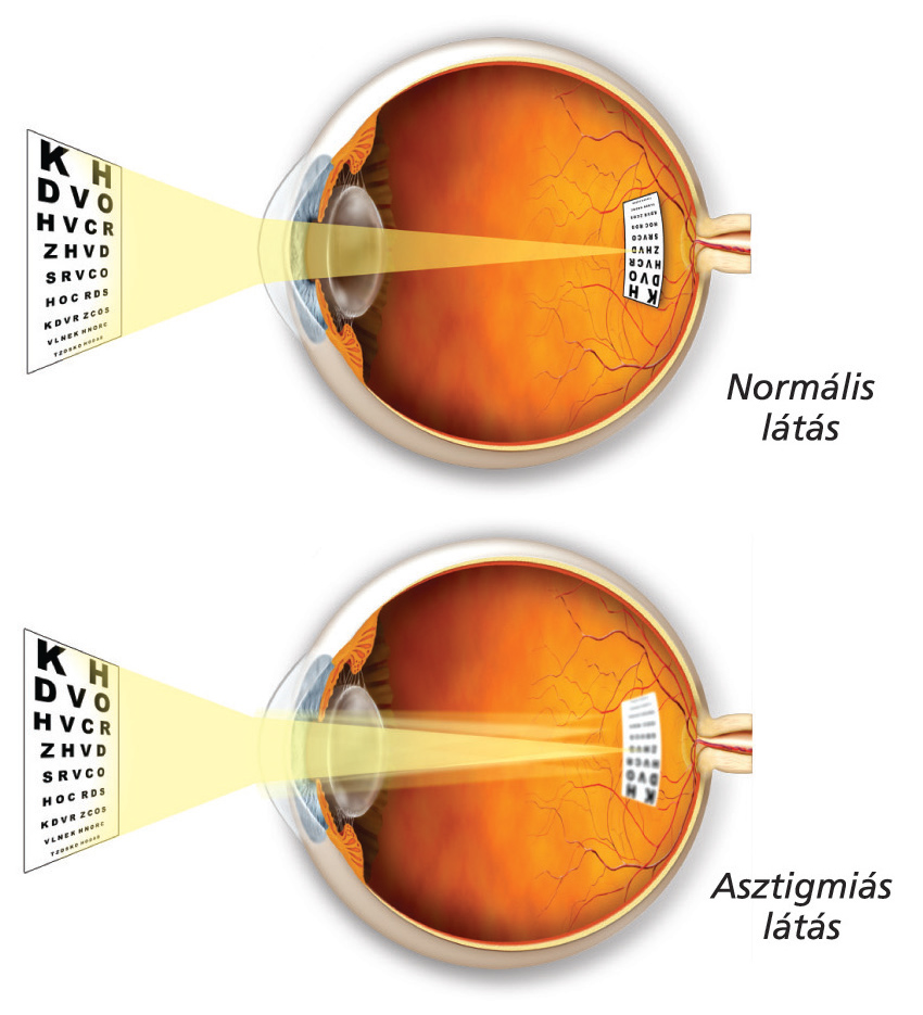 ha a látás elvész