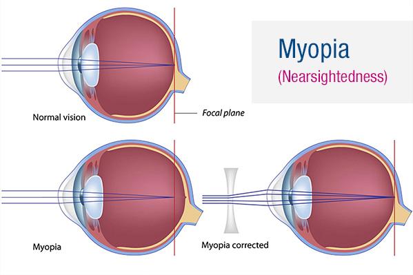 miért egyszerre hyperopia és myopia