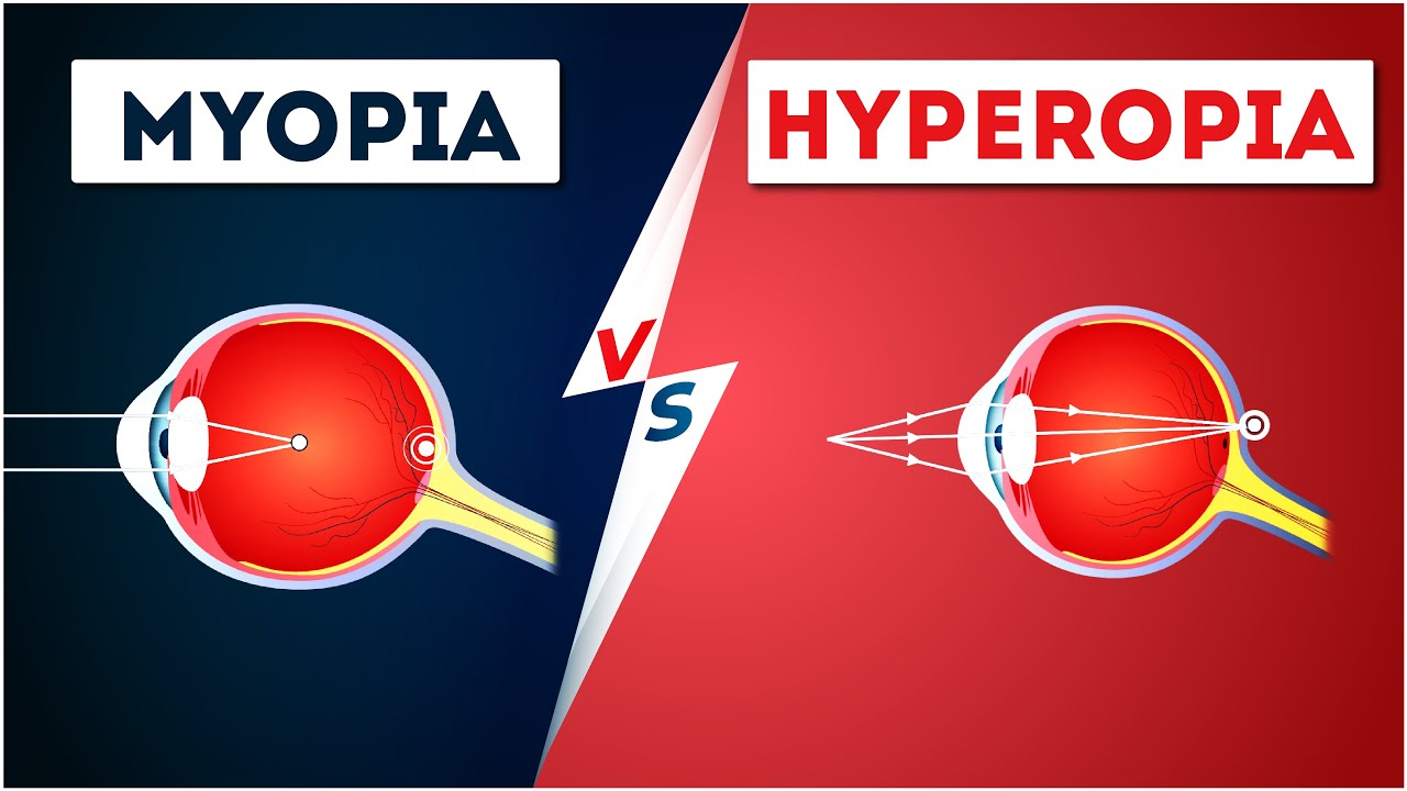 Rövidlátás (myopia)|Opti Markt Blog