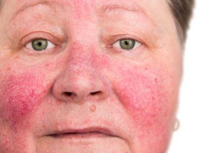 Keratitis rosacea