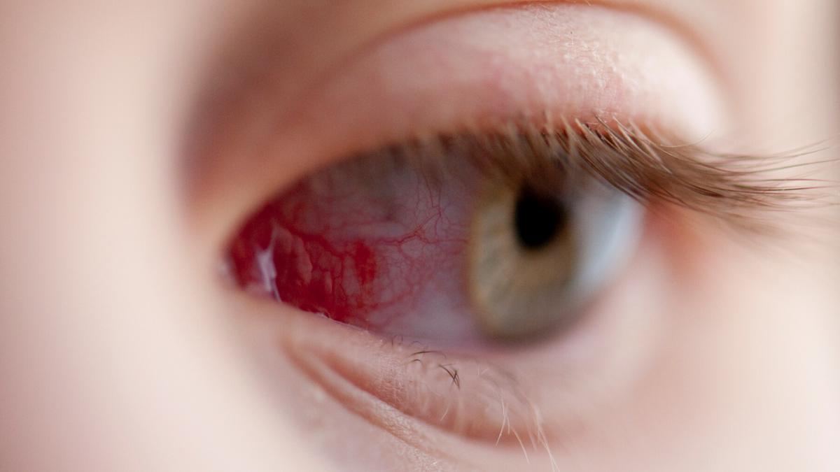 amelyből homályos látás az egyik szem homályos látása és következményei
