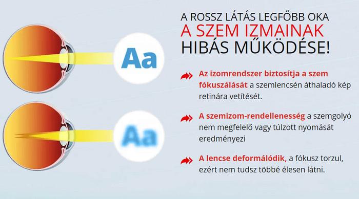 Otthoni gyógymódok a látás javítására | Természetes gyógymód | zonataxi.hu, Szem látás javitása