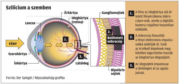 Milliók látását adhatja vissza a bionikus szem (videó) | Mandiner