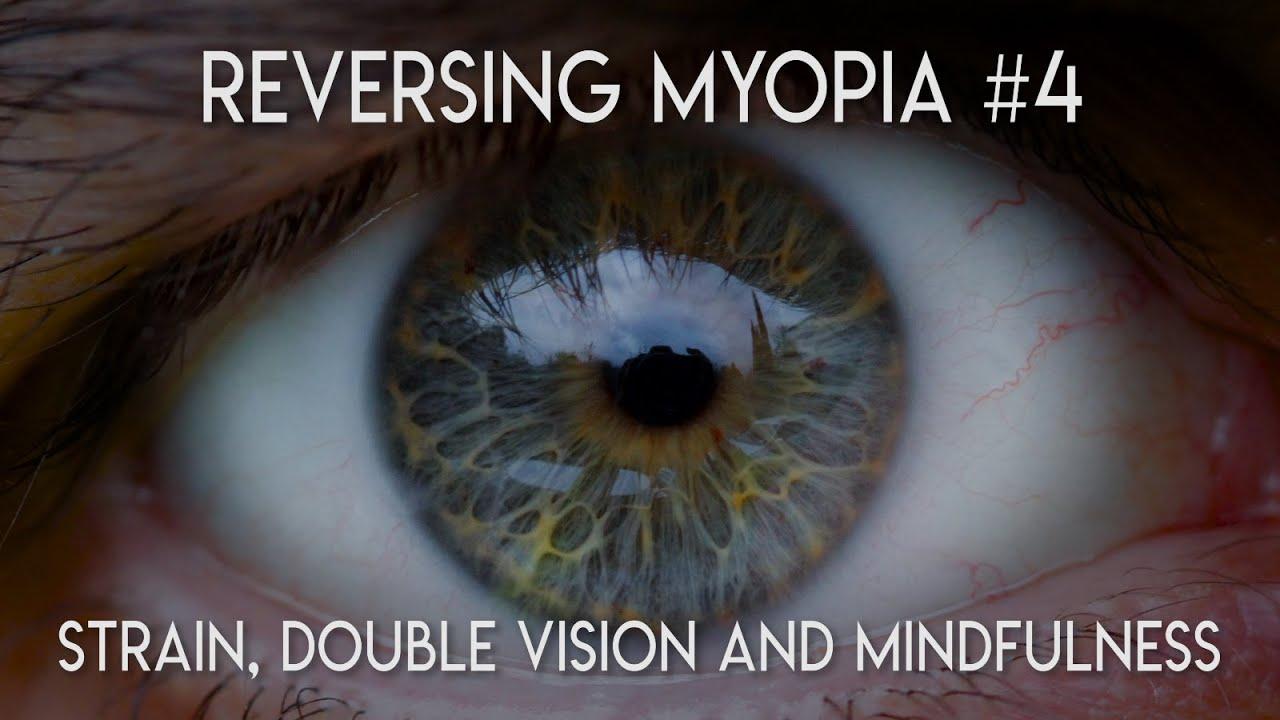 myopia bates módszer