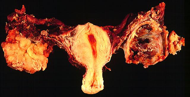 feltételezett petefészekgyulladás)