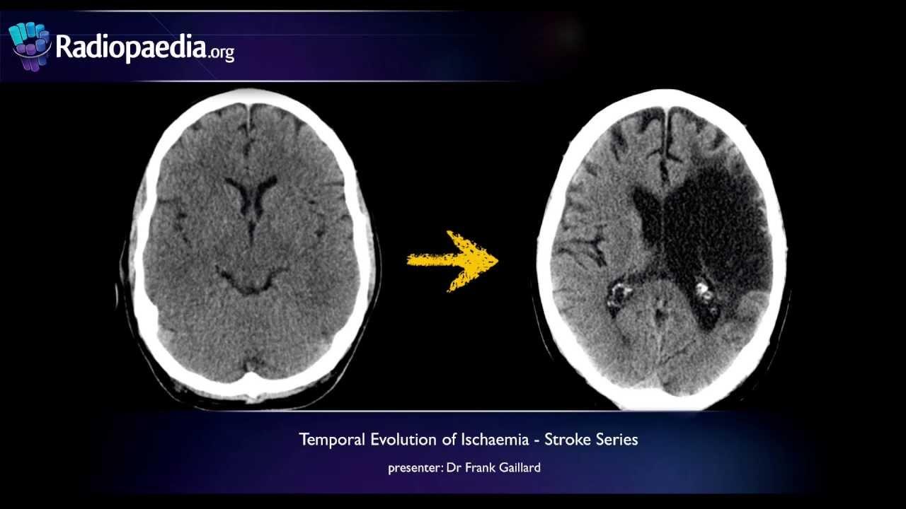 Ischaemiás stroke, bal oldal - következmények
