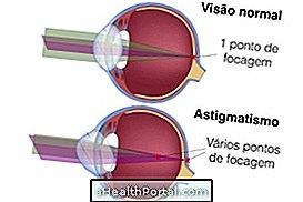 asztigmatizmus és látás