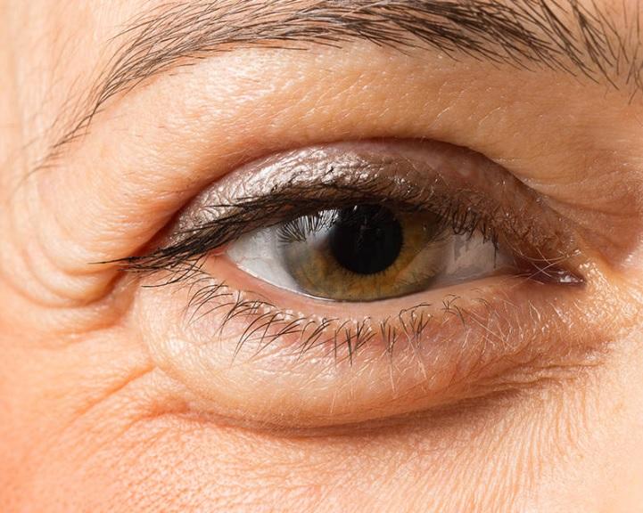 aki javította a látást a beütések szerint