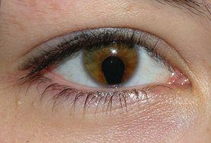 myopia és a szem asztigmatizmusa