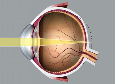 szemek hyperopia