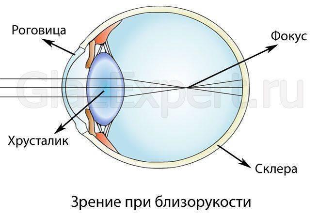 látássérülés okuk