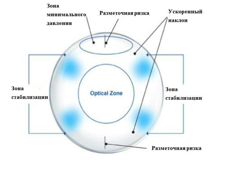 asztigmatizmus myopia és hyperopia egyszerre