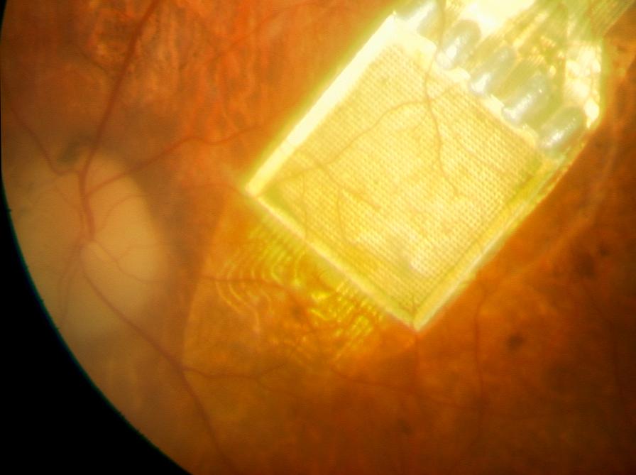 Akár a látás is visszanyerhető a Semmelweis Egyetem kutatóinak felfedezésével