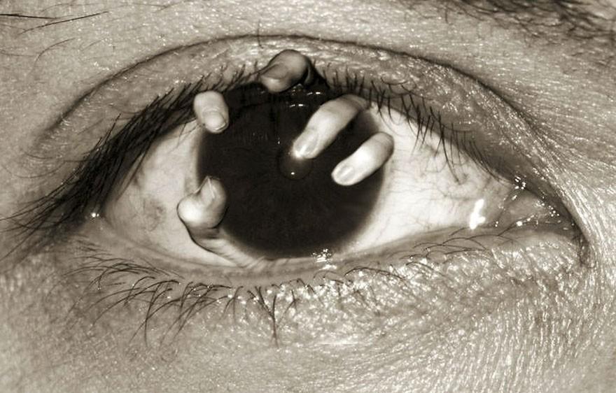 Szemromlás tünetei és kezelése