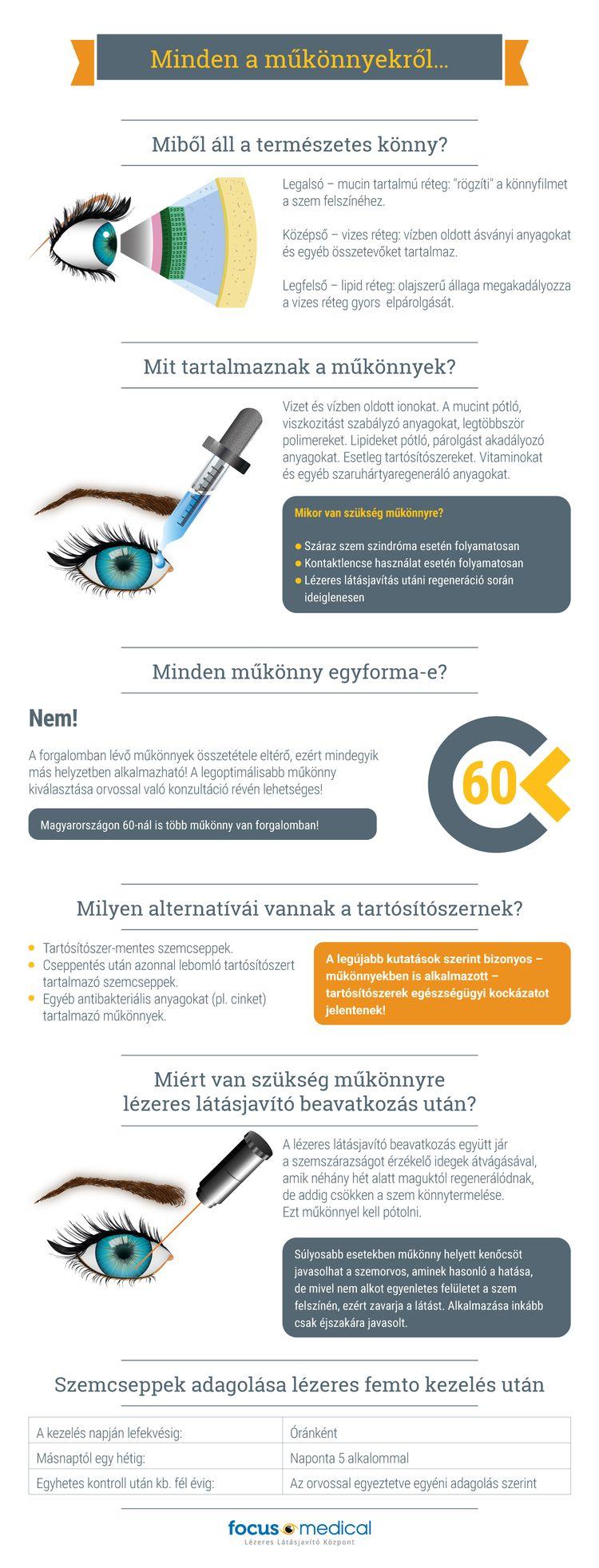 mi a szükség lézeres látáskorrekcióra 8-as helyzetben