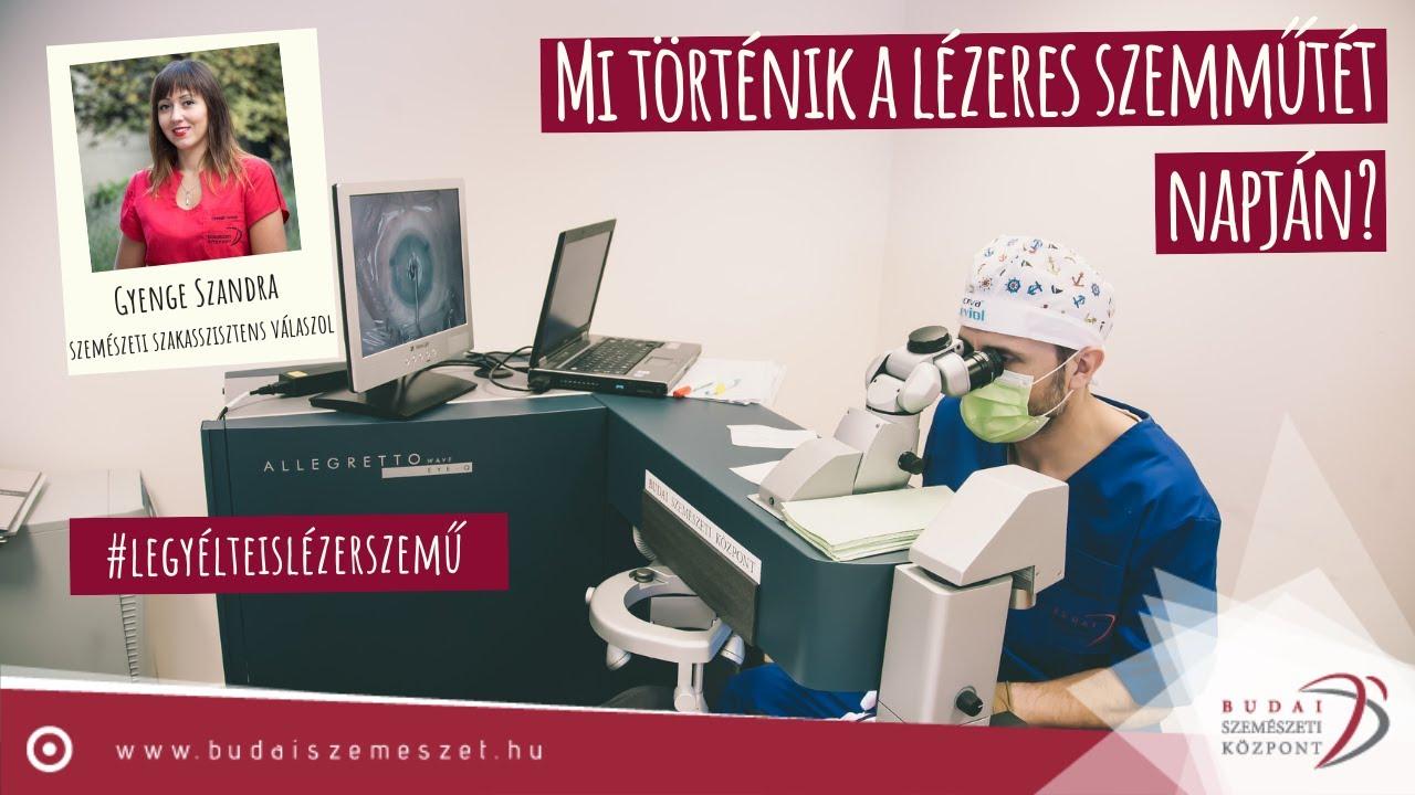 Z FEMTO 7D lézeres szemműtét | Ziemer FEMTO LDV Z8