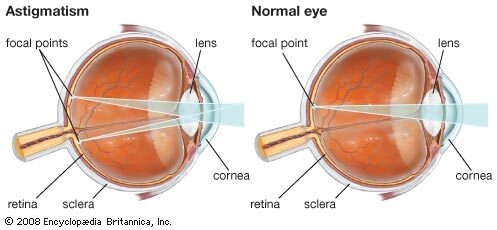 hogyan kell kezelni a látást mínusz 2)