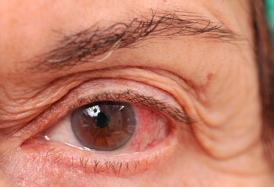 a glaukóma javította a látást