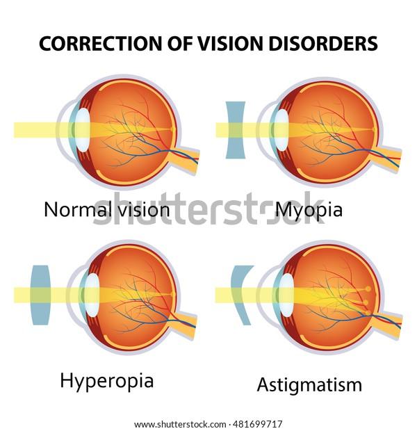 hyperopia myopia ugyanakkor