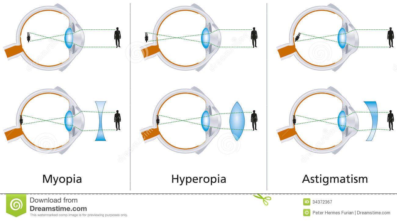 A myopia és hyperopia korrekciója lencsével
